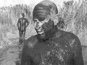 Лечение с кал